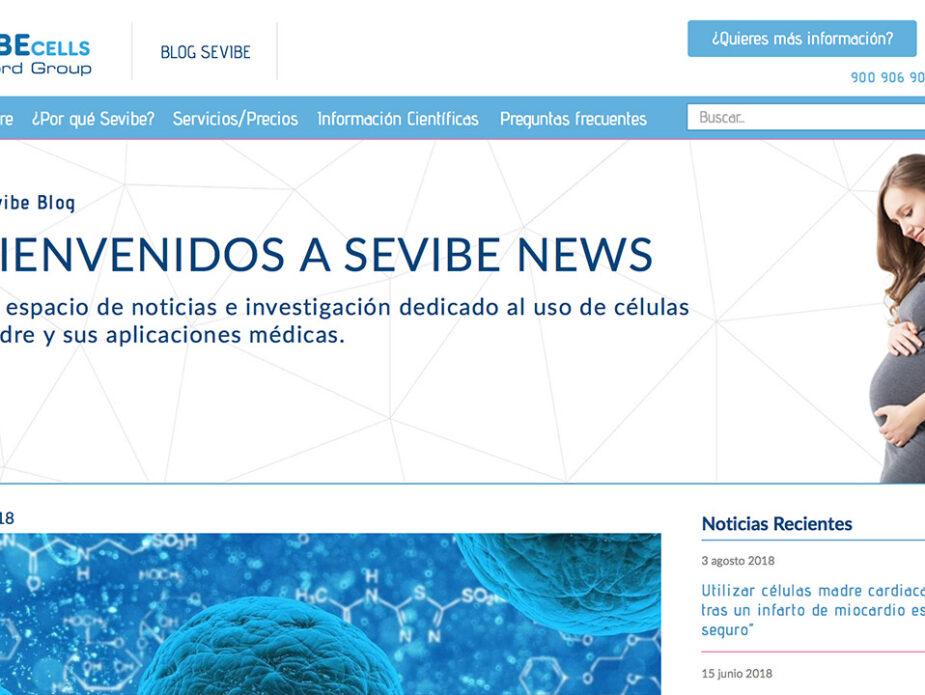 Diseño Sevibe Blog
